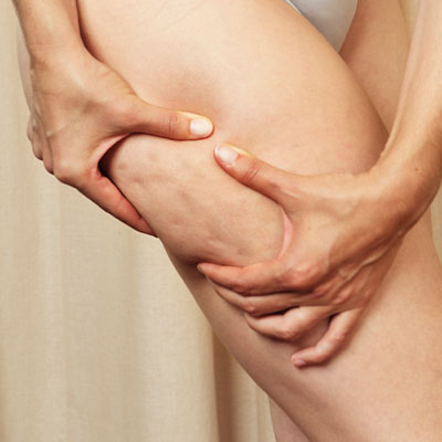 causes-of-cellulite.jpg